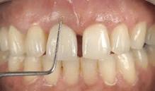 dente separado